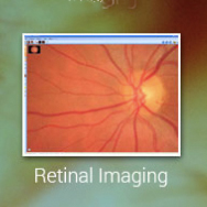 Retinal Imaging Solutions